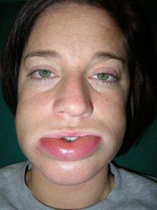 Angioedema em lábio
